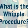 what-is-the-whipple-procedure-pancreas-surgery-1