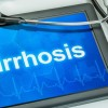 cirrhosis-liver-doctor-baltimore-md